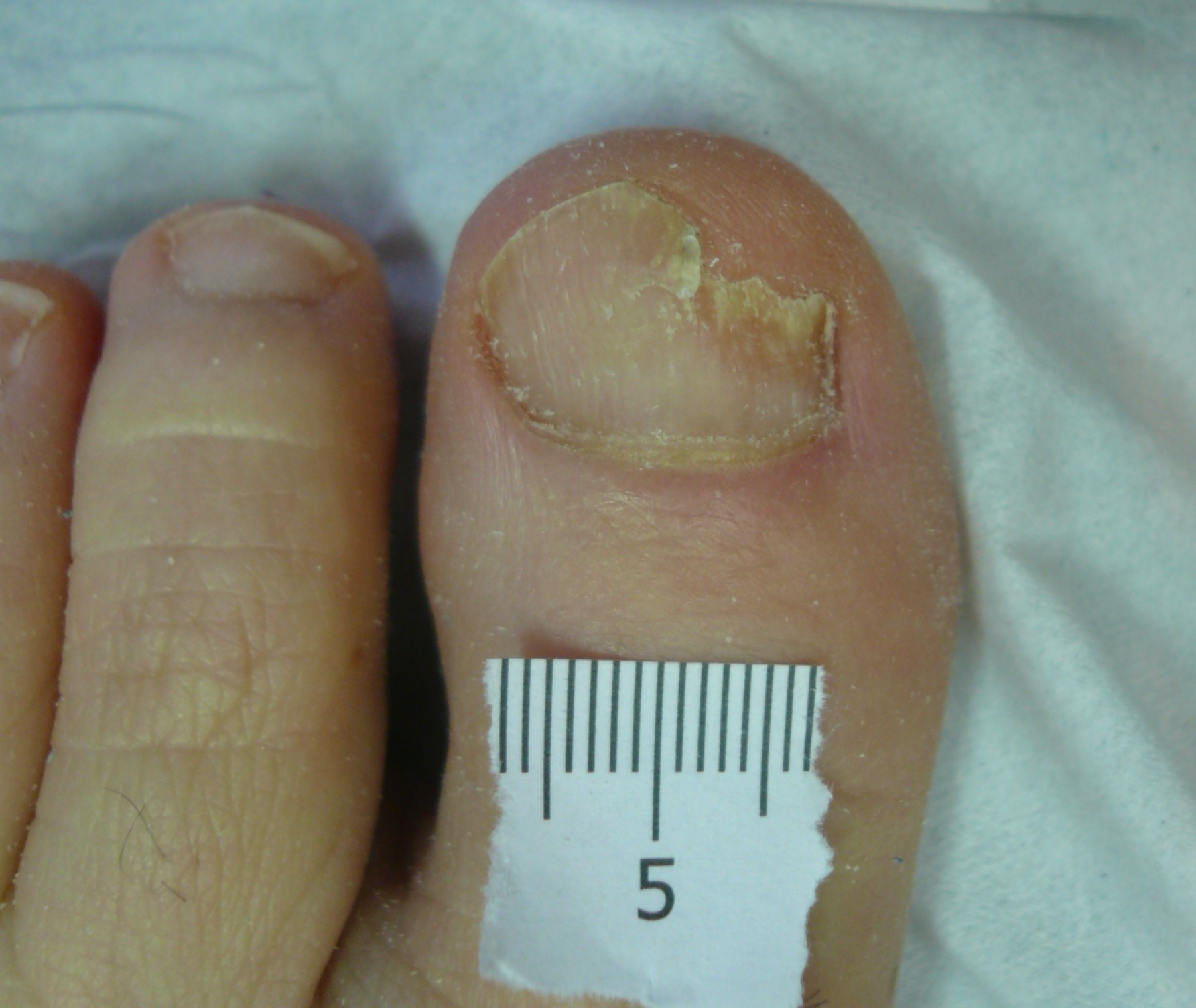 Laser Treatment for Fungal Nail Infection A&A Podiatrists and ...